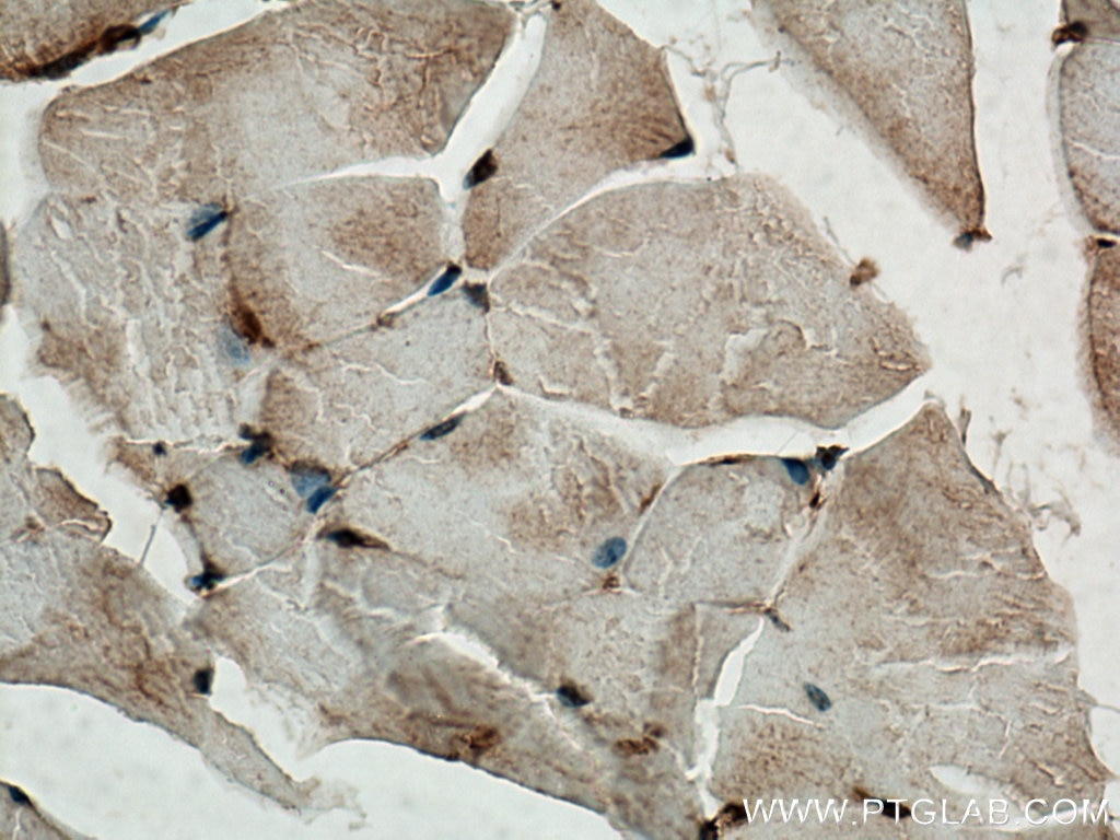IHC staining of mouse skeletal muscle using 19850-1-AP