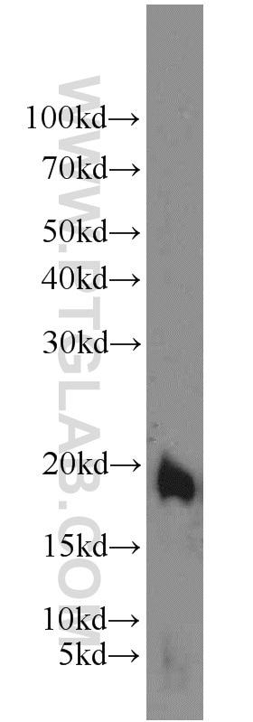15940-1-AP;mouse small intestine tissue