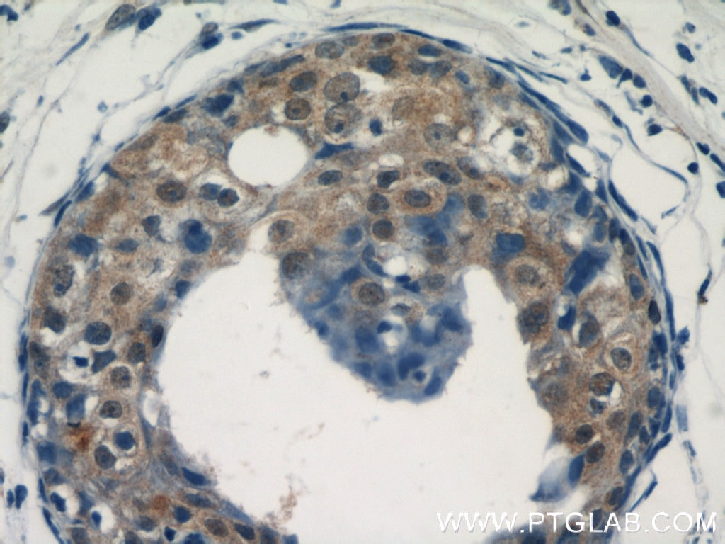 IHC staining of human breast cancer using 14304-1-AP