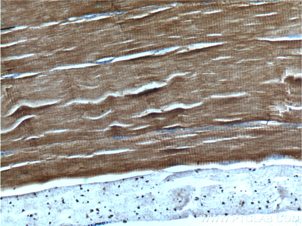 IHC staining of human skeletal muscle using 13504-1-AP