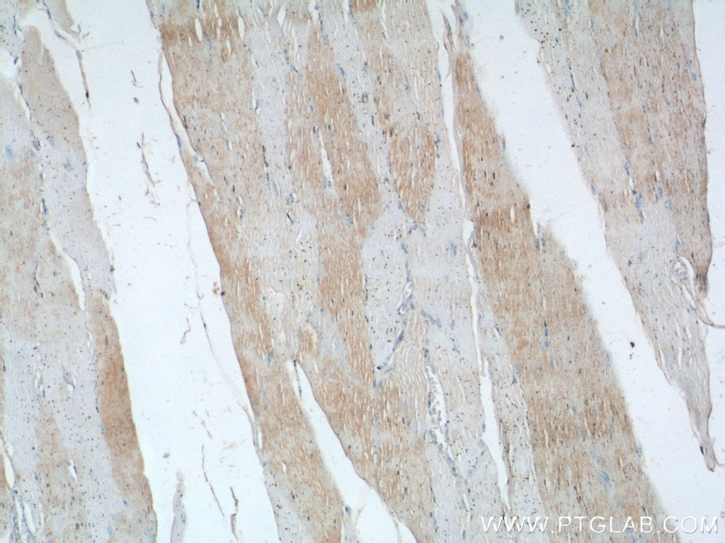 IHC staining of human skeletal muscle using 16102-1-AP