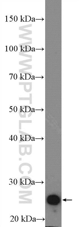 WB analysis of rat heart using 21652-1-AP