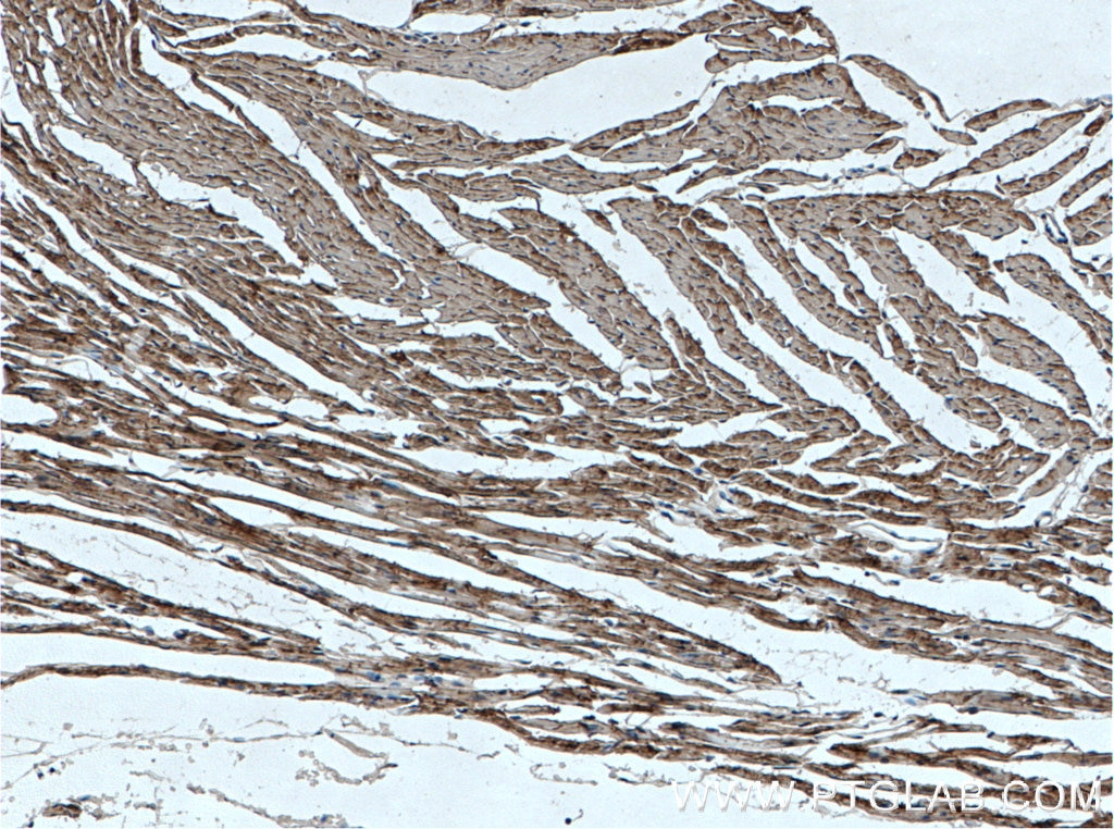 IHC staining of mouse heart using 15513-1-AP