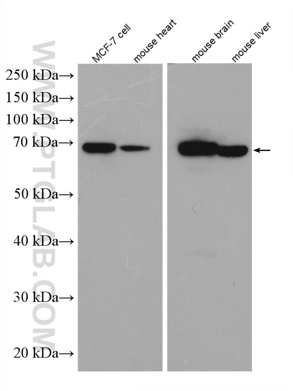 WB analysis of MCF-7 using 14528-1-AP
