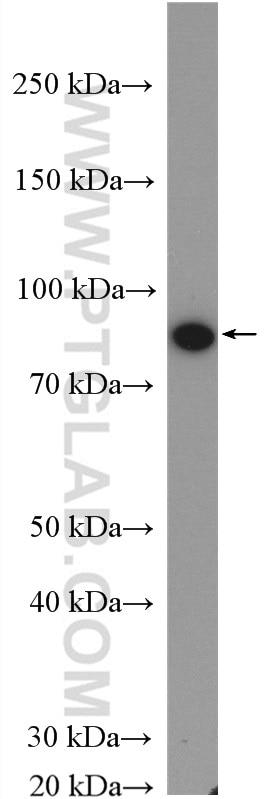 WB analysis of L02 using 20705-1-AP