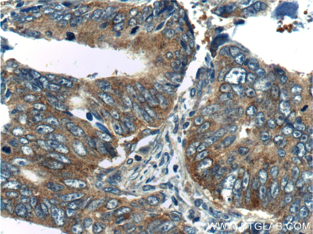 IHC staining of human colon cancer using 10824-1-AP