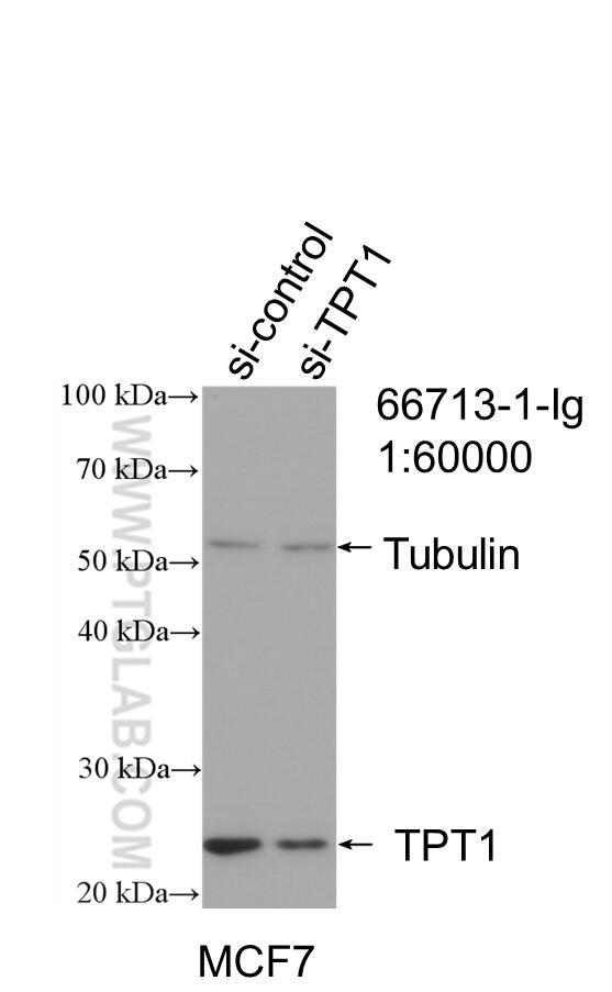 WB analysis of MCF-7 using 66713-1-Ig