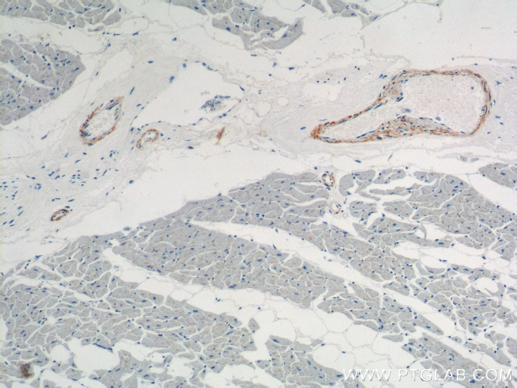 IHC staining of human heart using 15502-1-AP