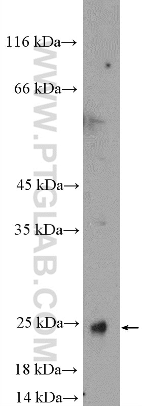 WB analysis of mouse colon using 15502-1-AP