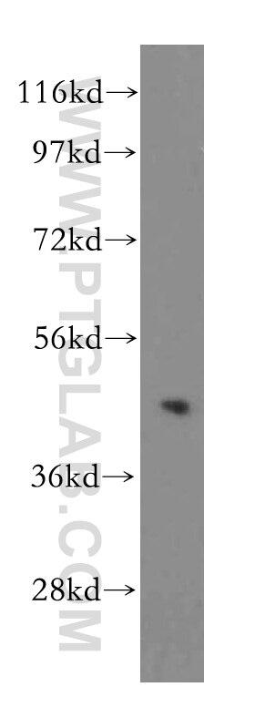 WB analysis of HeLa using 15359-1-AP