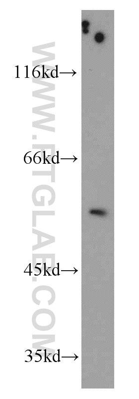 WB analysis of mouse testis using 11511-1-AP