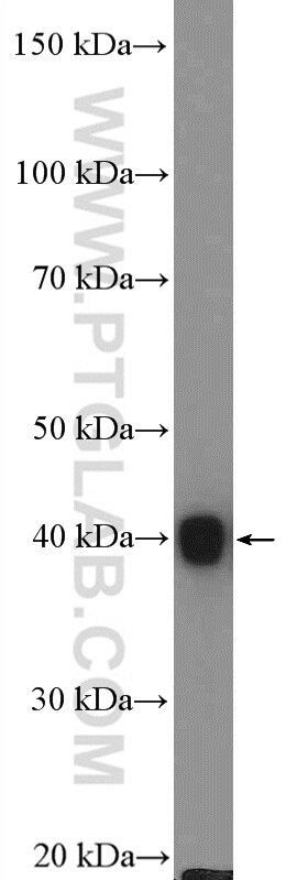 WB analysis of mouse skeletal muscle using 55456-1-AP