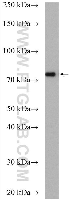 WB analysis of MCF-7 using 16124-1-AP