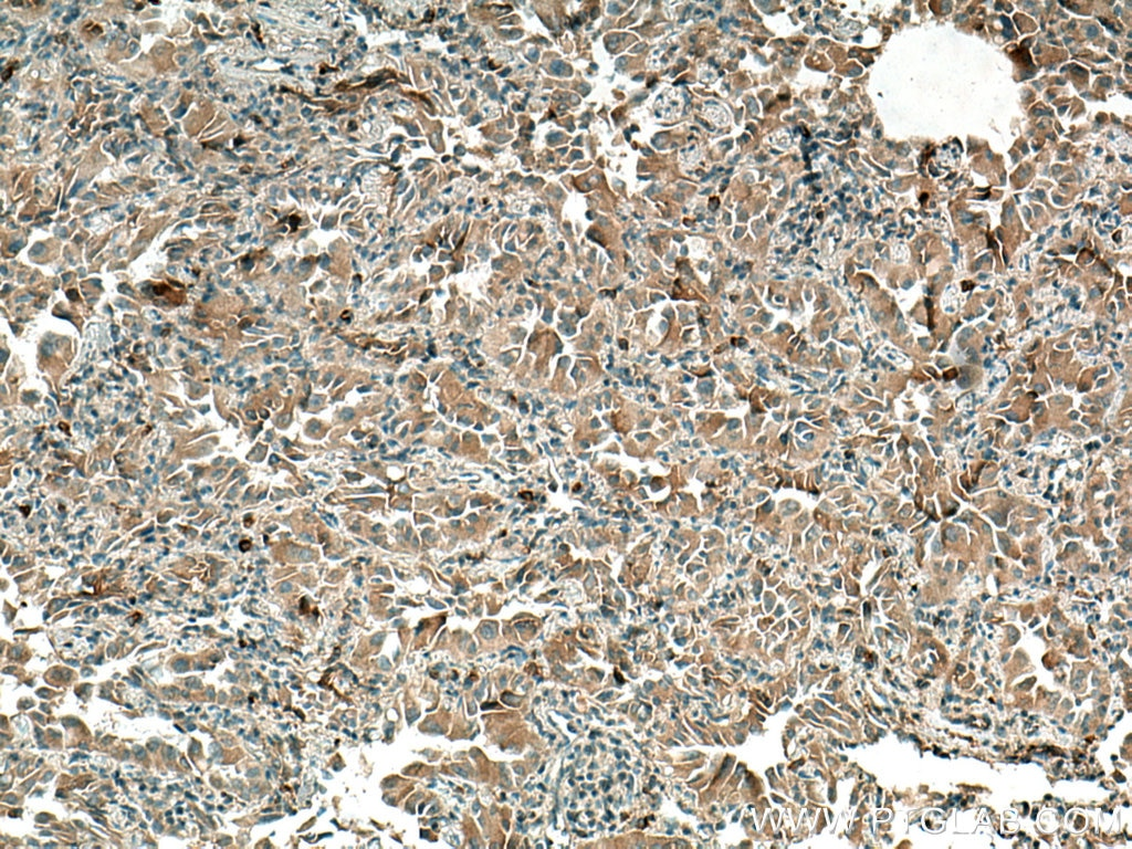 IHC staining of human lung cancer using 18304-1-AP
