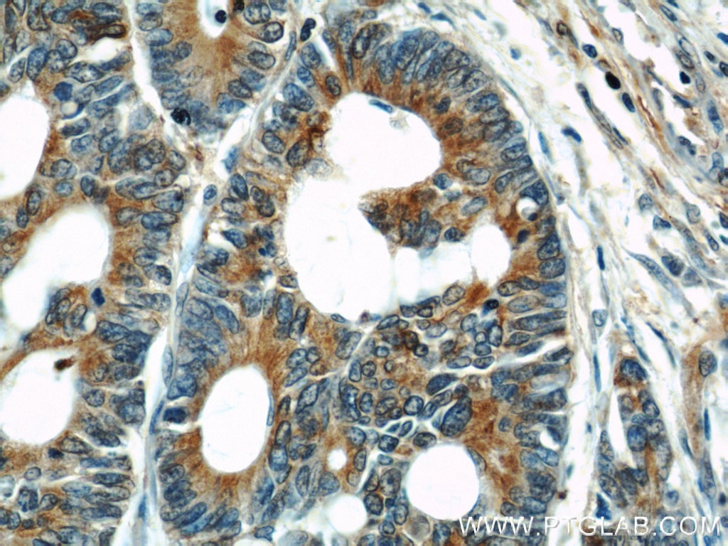 11224-1-AP;human colon cancer tissue