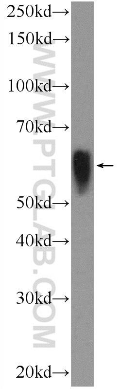alpha Tubulin WB 11224-1-AP alpha Tubulin Antibody  alpha Tubulin, Alpha tubulin ubiquitous, alpha tubulin,a tubulin, TUBA1B, tubulin, tubulin, alpha 1b;WB