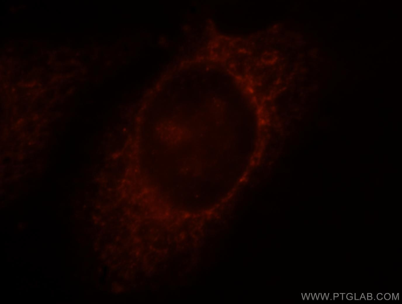 tubulin-beta Immunofluorescence IF 10094-1-AP tubulin-beta Antibody MC1R; TUBB4; beta-4