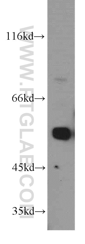 tubulin-beta western blot WB 10094-1-AP tubulin-beta Antibody MC1R; TUBB4; beta-4