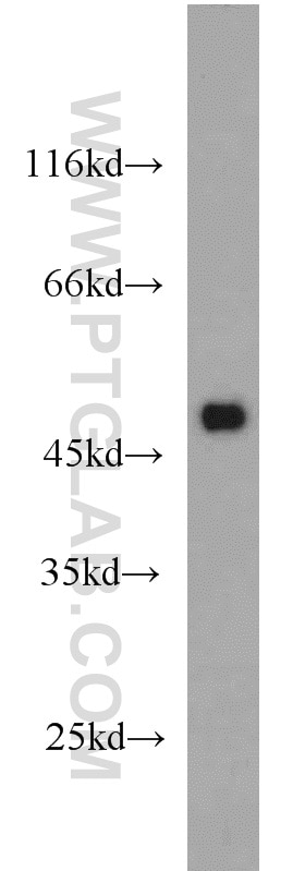10094-1-AP;mouse brain tissue