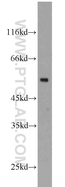10094-1-AP;HeLa cells