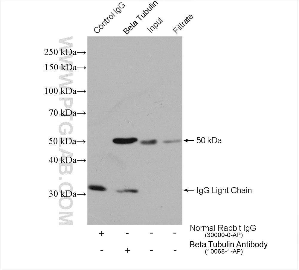 IP experiment of HEK-293 using 10068-1-AP