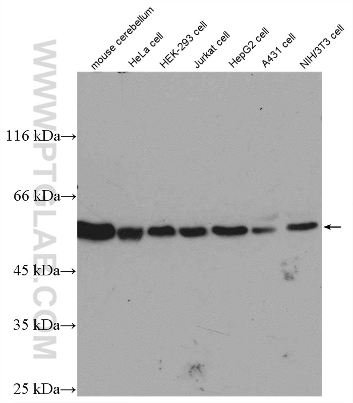 Various lysates were subjected to SDS PAGE followed by western blot with  10068-1-AP (beta Tubulin antibody) at dilution of 1:1000 incubated at room  ...