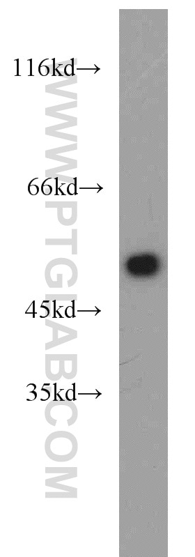 beta Tubulin WB 10068-1-AP beta Tubulin Antibody  beta 4, beta tubulin, MC1R, TUBB, tubulin;WB