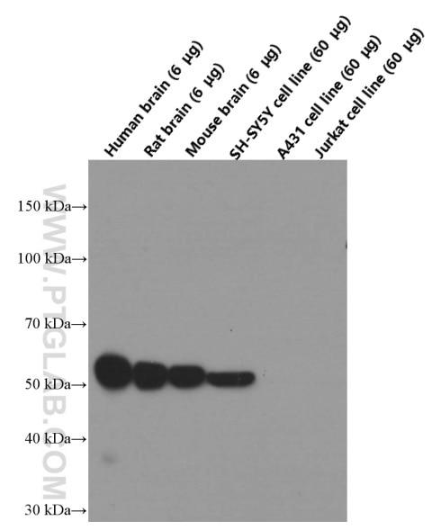 WB analysis of fetal human brain using 66375-1-Ig