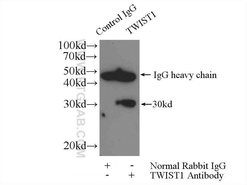 IP experiment of MDA-MB-453s using 25465-1-AP
