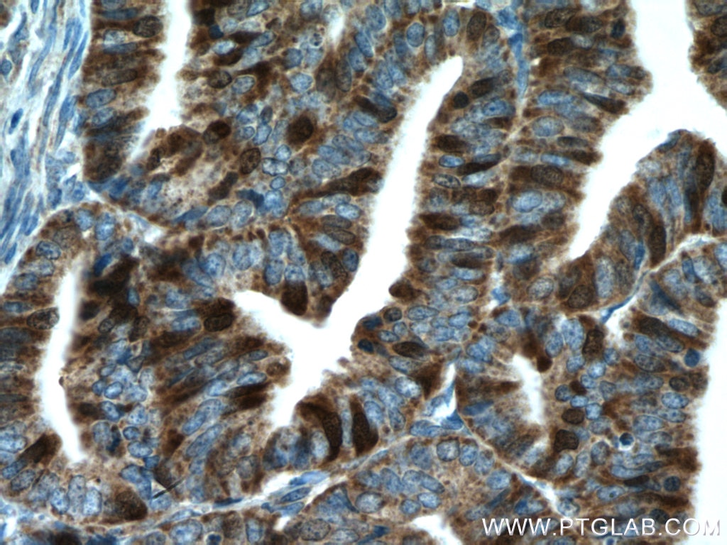 IHC staining of human endometrial cancer using 15047-1-AP