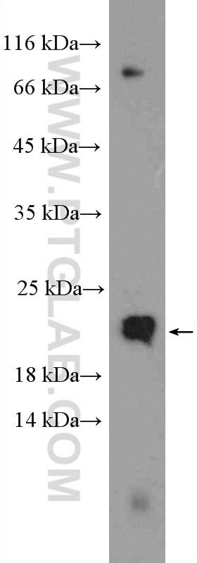 WB analysis of HeLa using 15508-1-AP