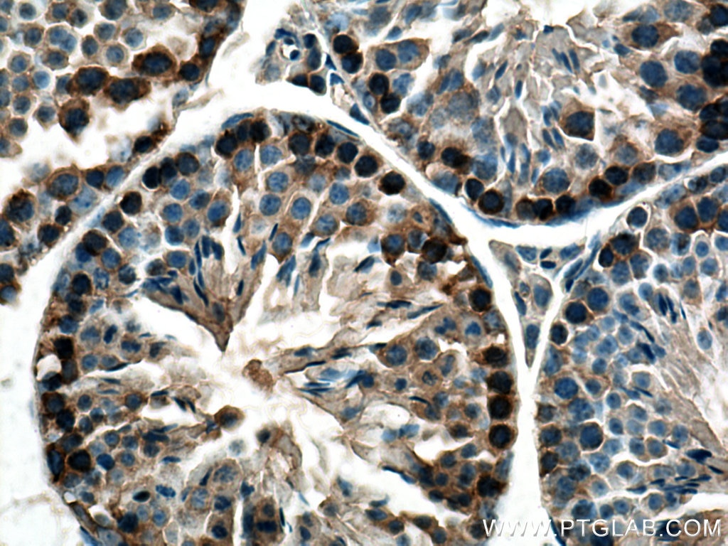 IHC staining of mouse testis using 13211-1-AP