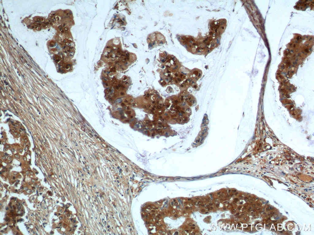 IHC staining of human breast cancer using 10243-1-AP
