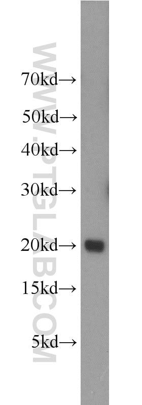 WB analysis of human spleen using 10207-2-AP