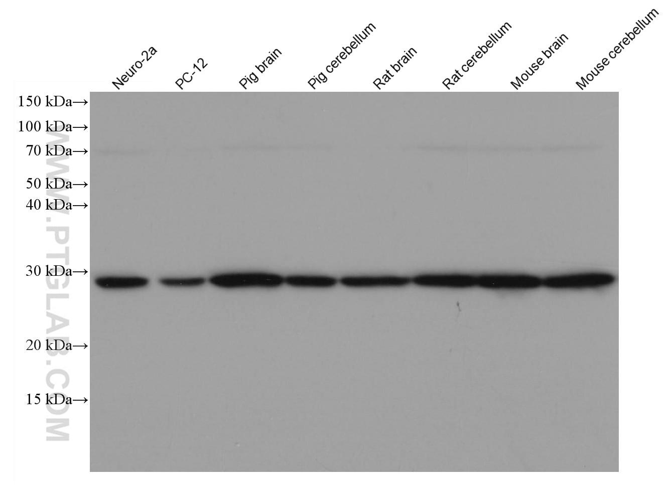 WB analysis using 66230-1-Ig