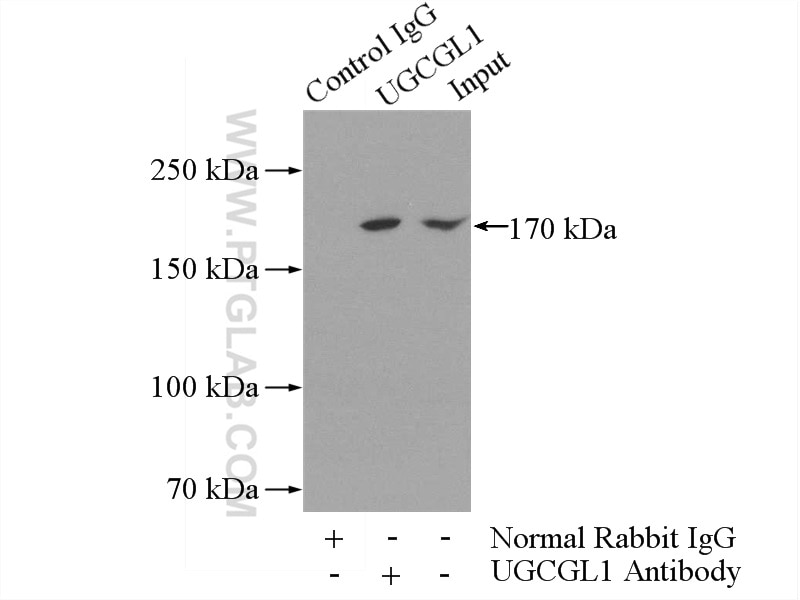 IP experiment of mouse brain using 14170-1-AP