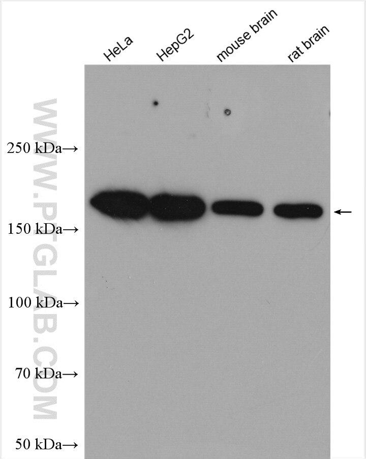 WB analysis using 14170-1-AP