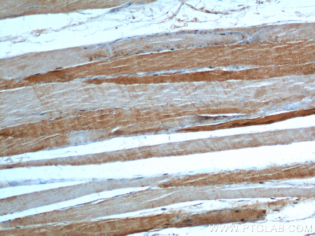 IHC staining of human skeletal muscle using 20986-1-AP