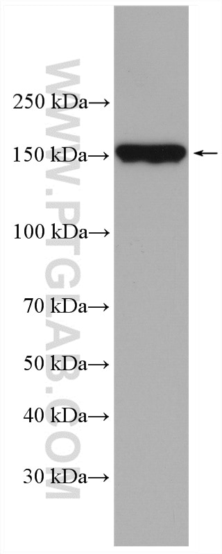 WB analysis of mouse skeletal muscle using 20986-1-AP