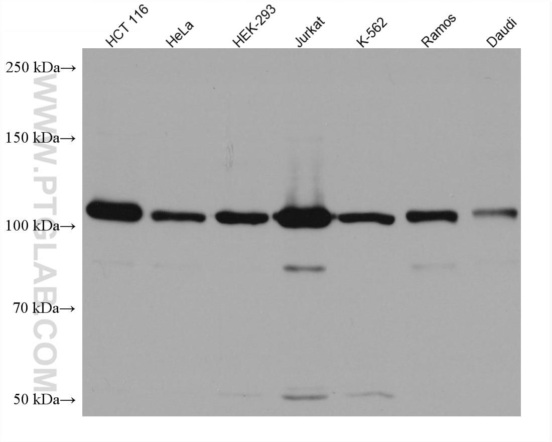 WB analysis using 67805-1-Ig