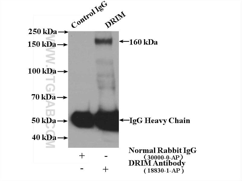 IP experiment of HeLa using 18830-1-AP