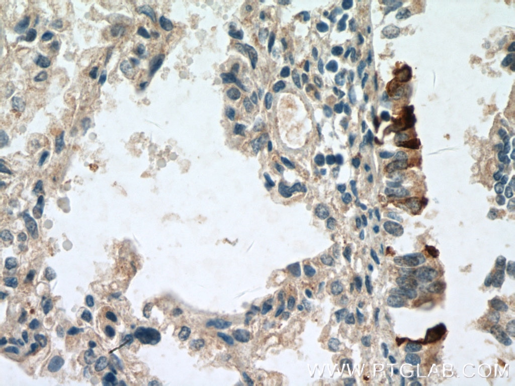 IHC staining of human lung using 26909-1-AP