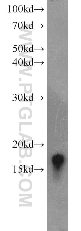 VAMP3/Cellubrevin Polyclonal antibody