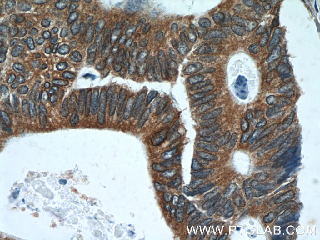 IHC staining of human colon cancer using 15275-1-AP
