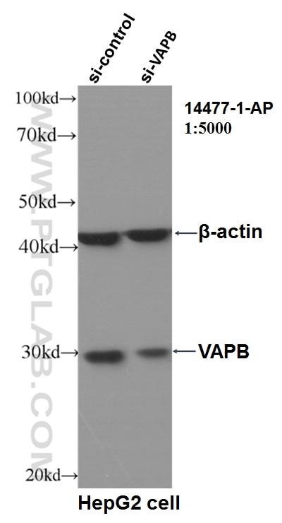 WB analysis of HepG2 using 14477-1-AP