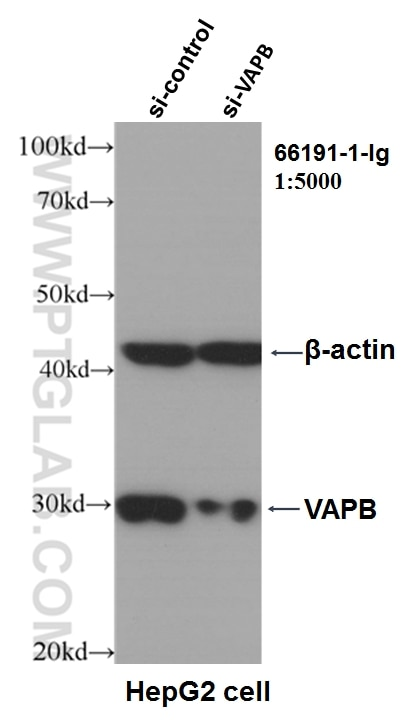 WB analysis of HepG2 using 66191-1-Ig