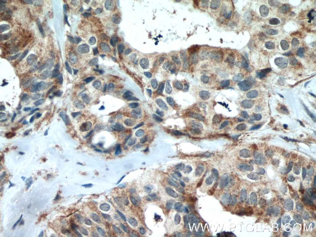 IHC staining of human breast cancer using 16364-1-AP