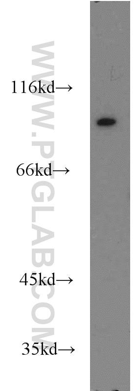 WB analysis of Jurkat using 16364-1-AP