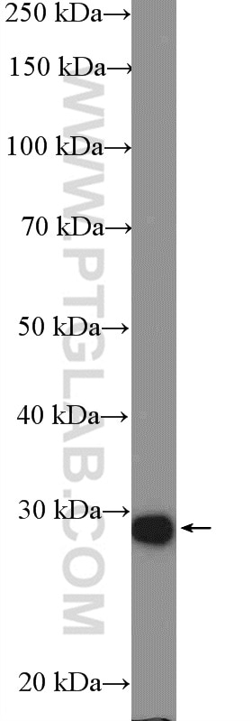 55259-1-AP;mouse brain tissue