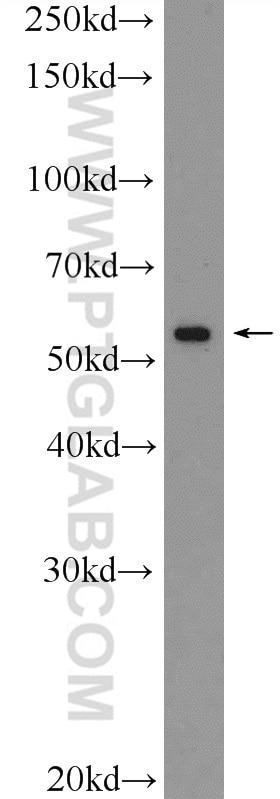 VDR Polyclonal antibody